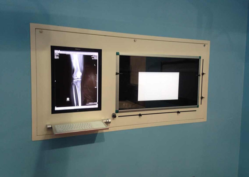 X-ray viewer